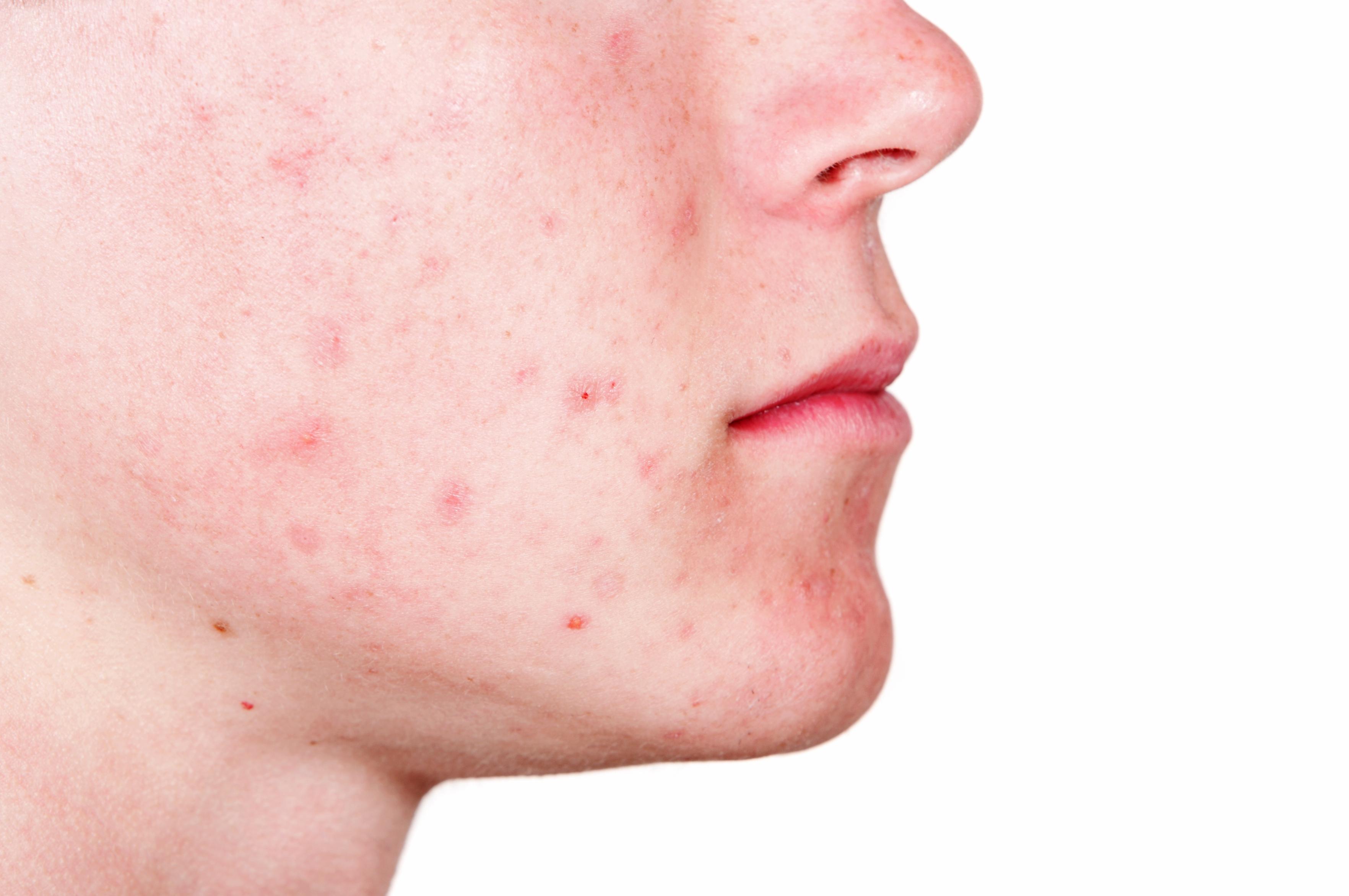 acne av stress