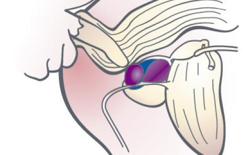 En anledning till blod i sädesvätskan är en infektion i prostatan som kan behandlas med antibiotika.