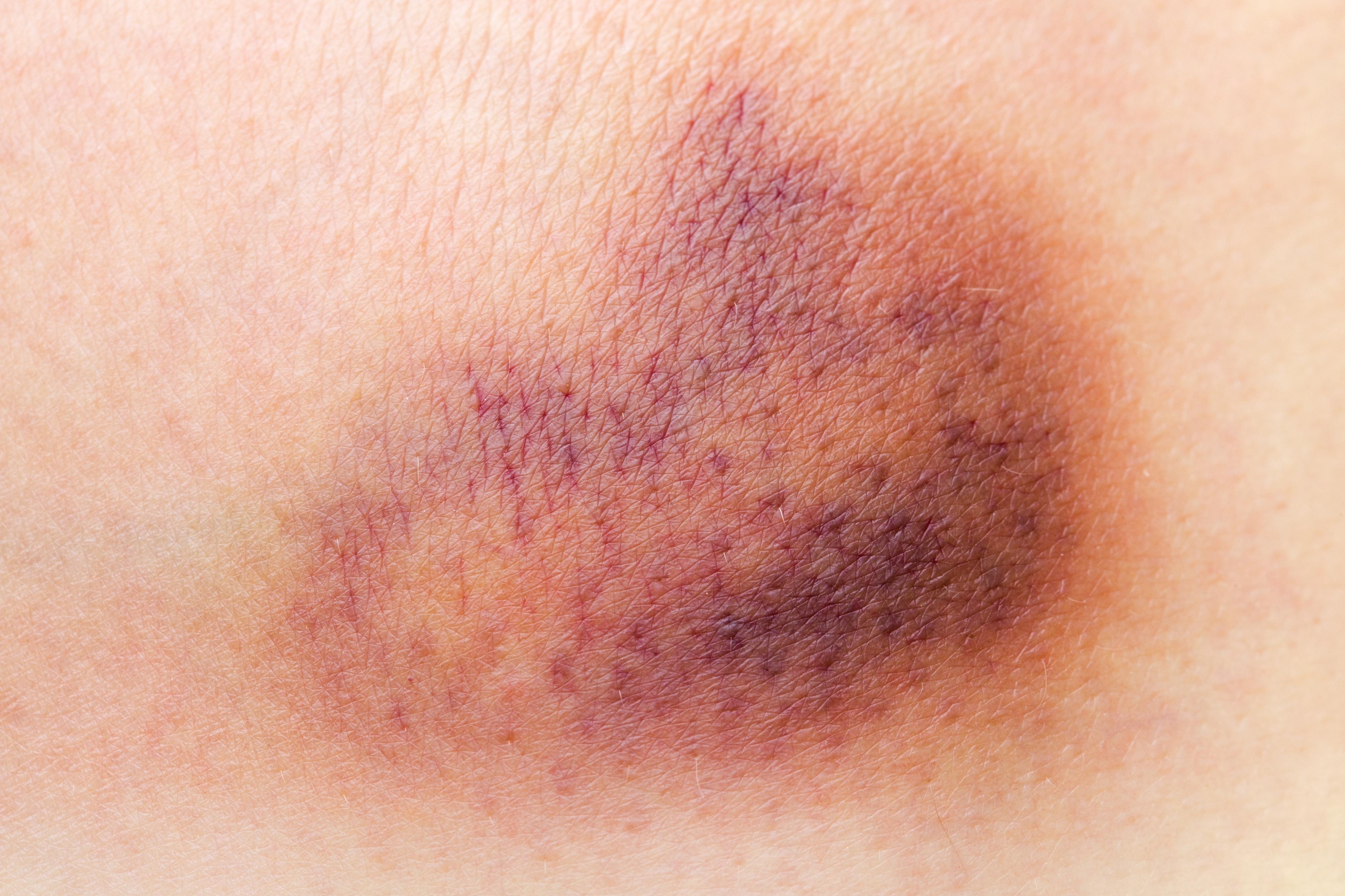 Om du har lätt att få blåmärken kan det vara ett tecken på trombocytopeni.