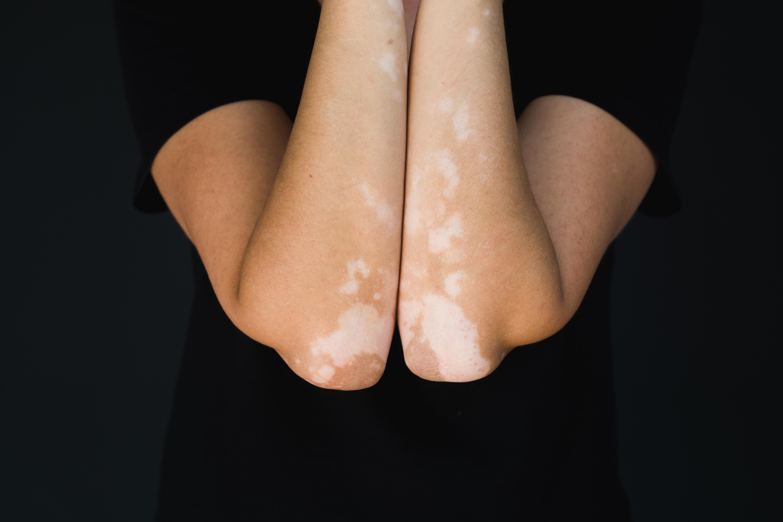 Storleken på de vita områdena vid vitiligo varierar, men de är oftast kraftigt avgränsade mot den friska huden.