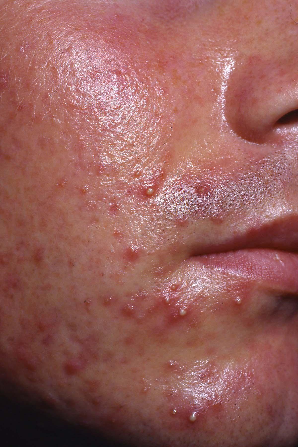 Bli av med herpes